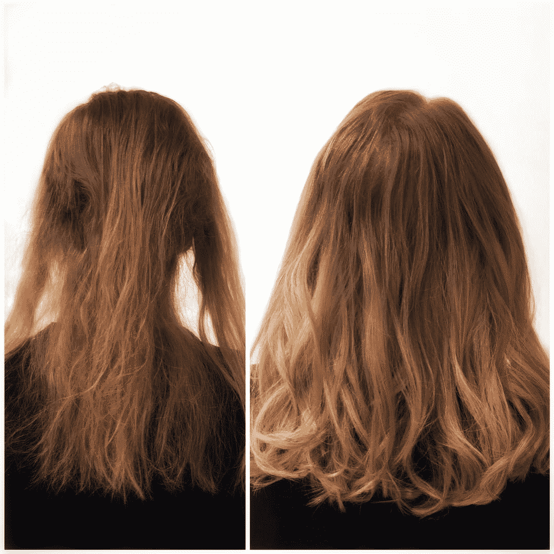 trichotillomania treatment nyc