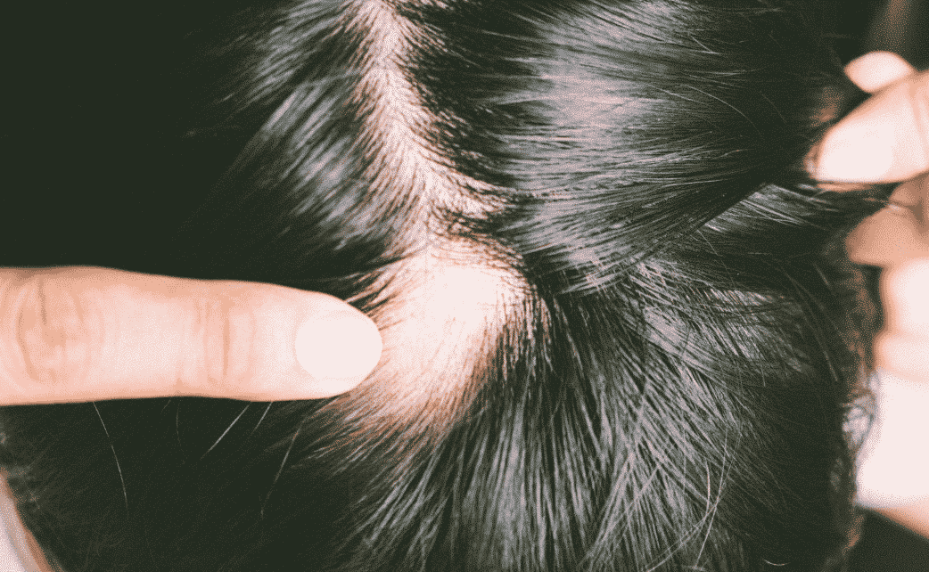 bald spot in scalp